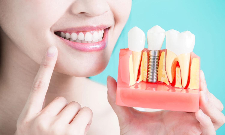 Czy warto zdecydować się na implanty?