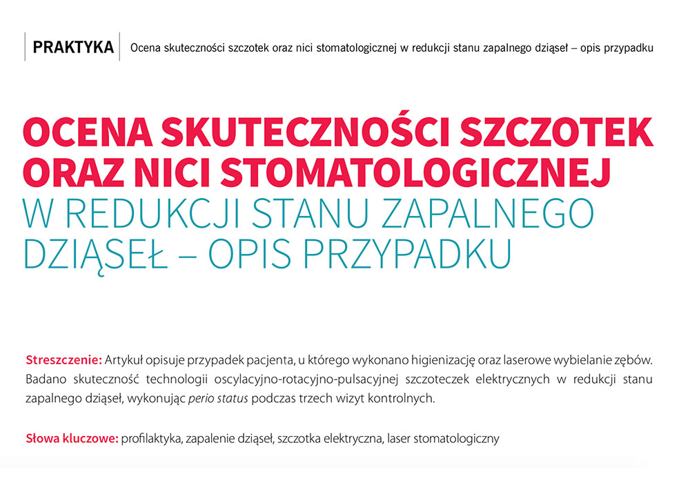 Skuteczność szczotek oraz nici w redukcji stanu zapalnego dziąseł - Kwartalnik Stomatologa Praktyka Polish & English Journal for Dentists e-Dentico styczeń 2017