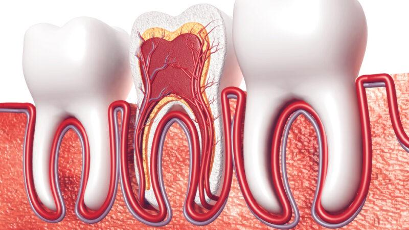 Usuwanie korzenia zęba, jak przebiega zabieg?
