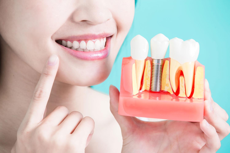 Implantologia w Atelier Uśmiechu
