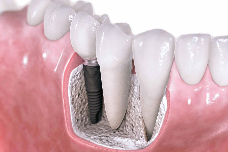 Implantoprotetyka Atelier Uśmiechu